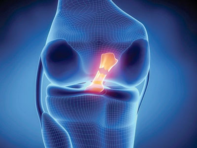 knee-ligament-instability