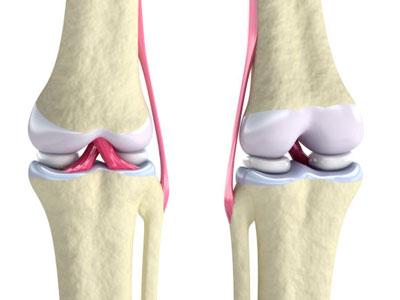 knee-meniscus-tear