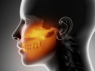 Temporomandibular Joint (TMJ) Pain