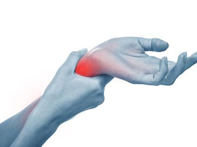 wrist-sprains